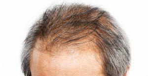 Lutter contre la perte des cheveux - Traiter la calvitie à Aix en Provence