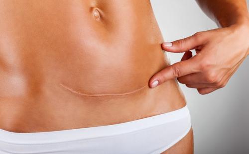 Traiter les cicatrices - Chirurgie esthétique Aix en Provence